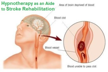The Case for Hypnotherapy as an Aide to Stroke Rehabilitation