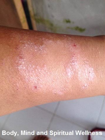 skin-disease